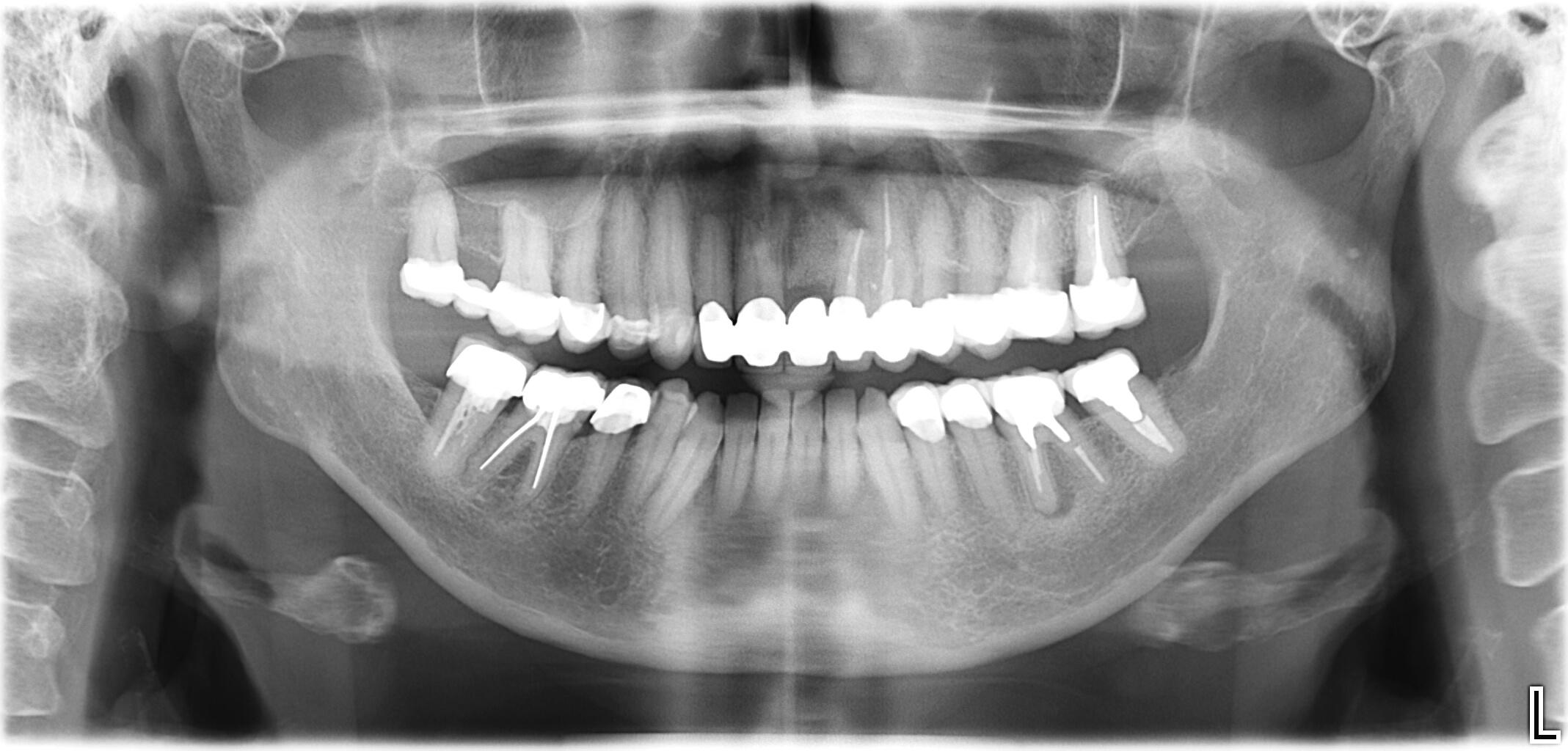 Gezogen essensreste in wunde zahn Zahn ziehen